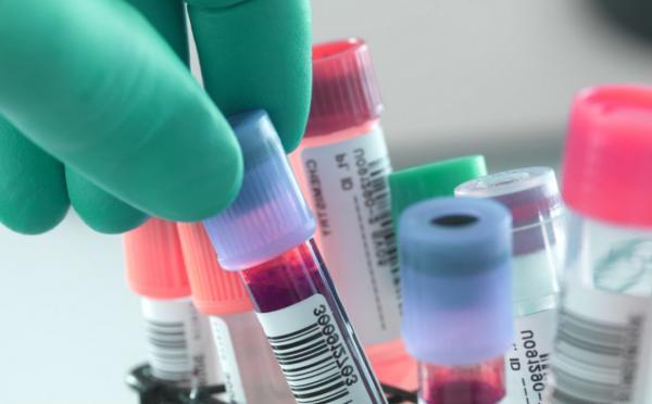 Secretaria de Saúde se manifesta sobre sistema de coleta de exames